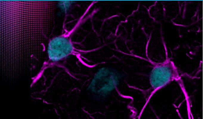 Biotium autofluorescence