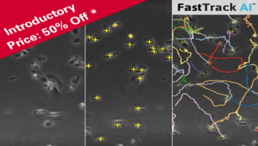 Chemotaxis Fasttrack AI image Analysis ; Say good bye to manual Tracking