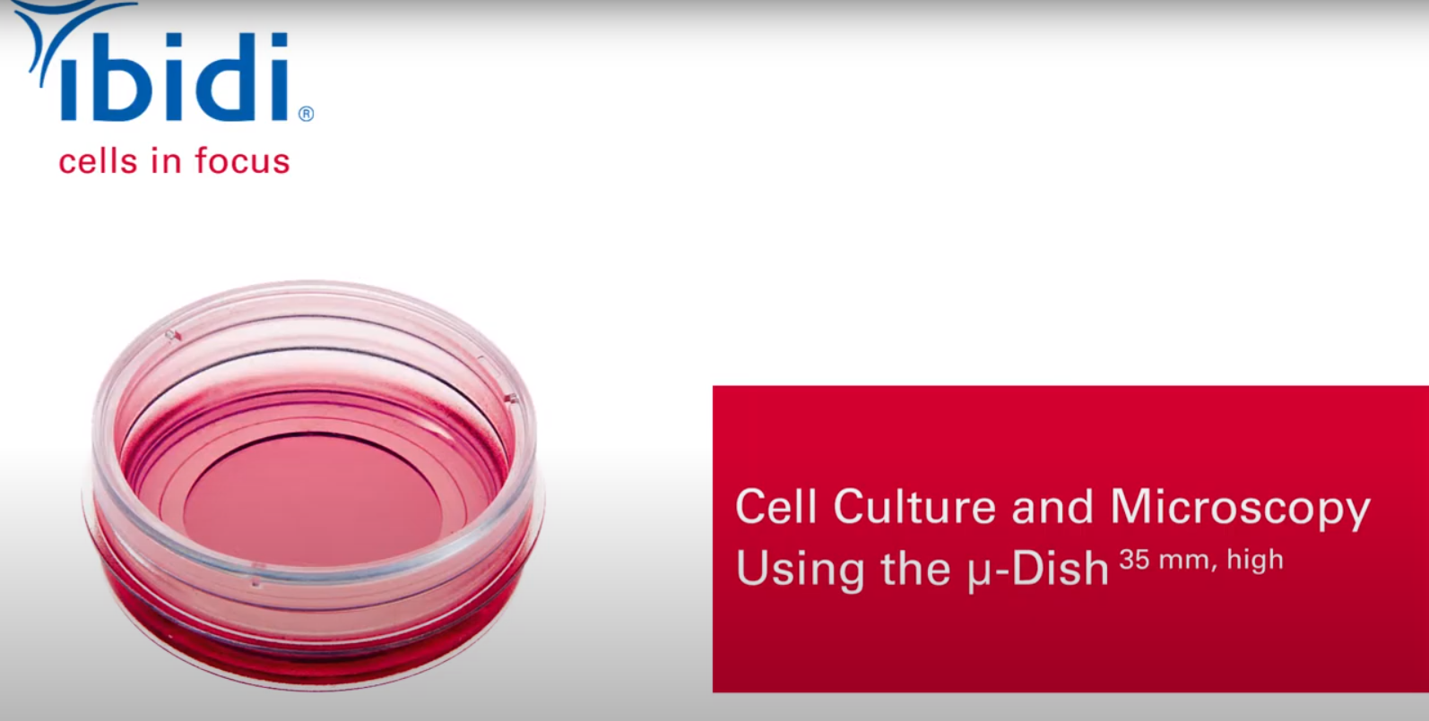 Cell Culture and Microscopy Using the µ-Dish 35 mm, high